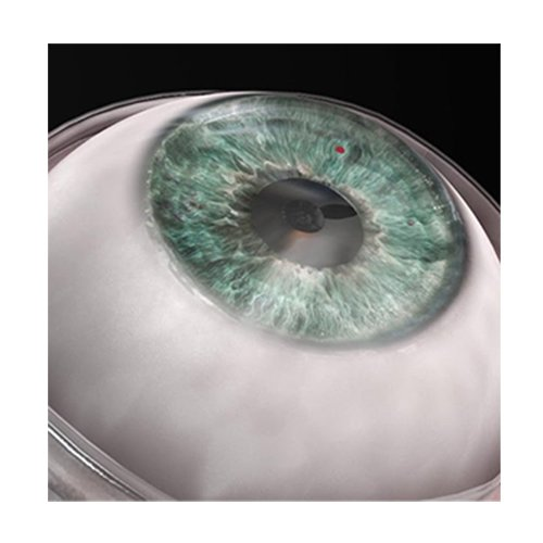 A new application of electrospinning - artificial cornea